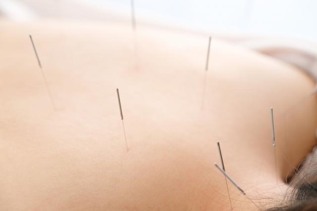 鍼灸施術で自律神経の働きを整えて症状を改善します